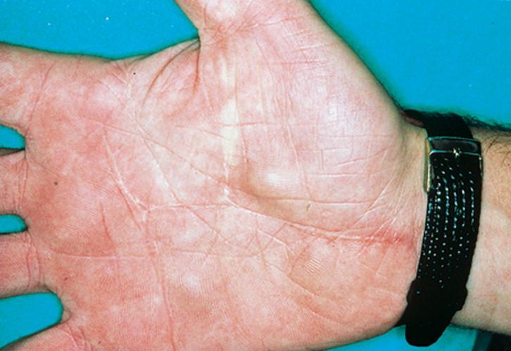 cancer sarcoma epitelioide hpv scaly skin