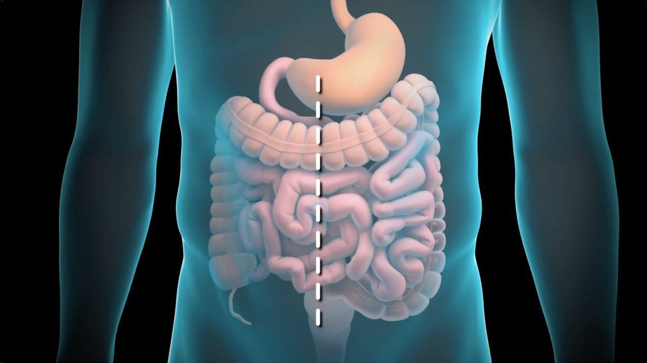 cancer de colon que no se puede operar