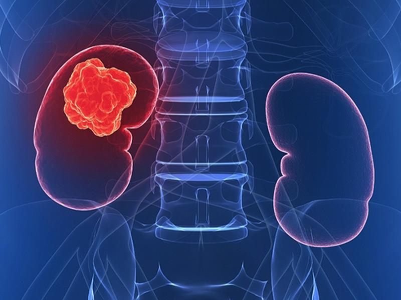 cancerul la rinichi