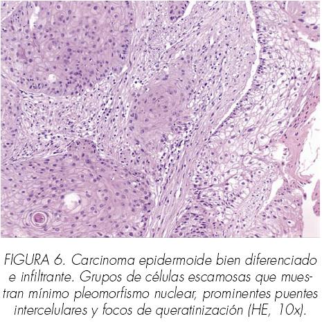 cancer pulmonar epidermoide)