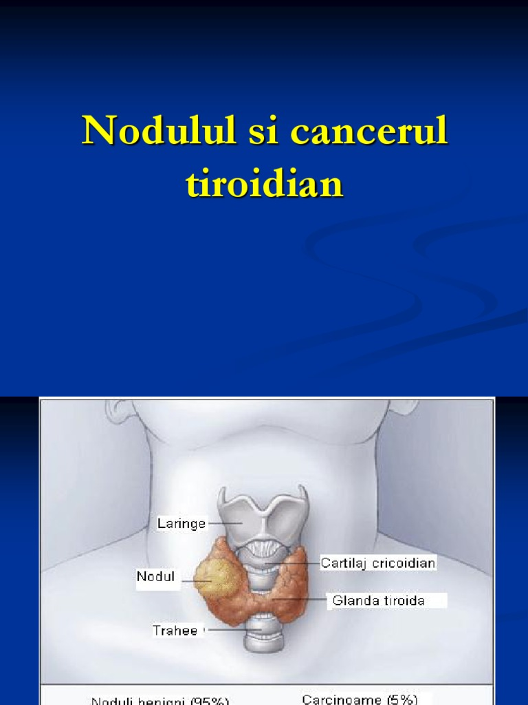cancerul tiroidian anaplazic)