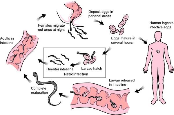 enterobiasis por enterobius vermicularis)