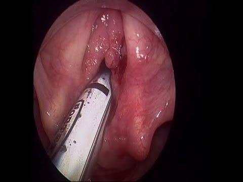 coblation laryngeal papilloma)