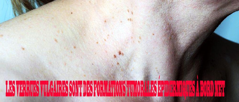 papillomavirus chez lhomme que faire)