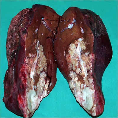 hepatic cancer resection)