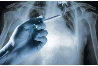 cancerul de plamani recidiva)