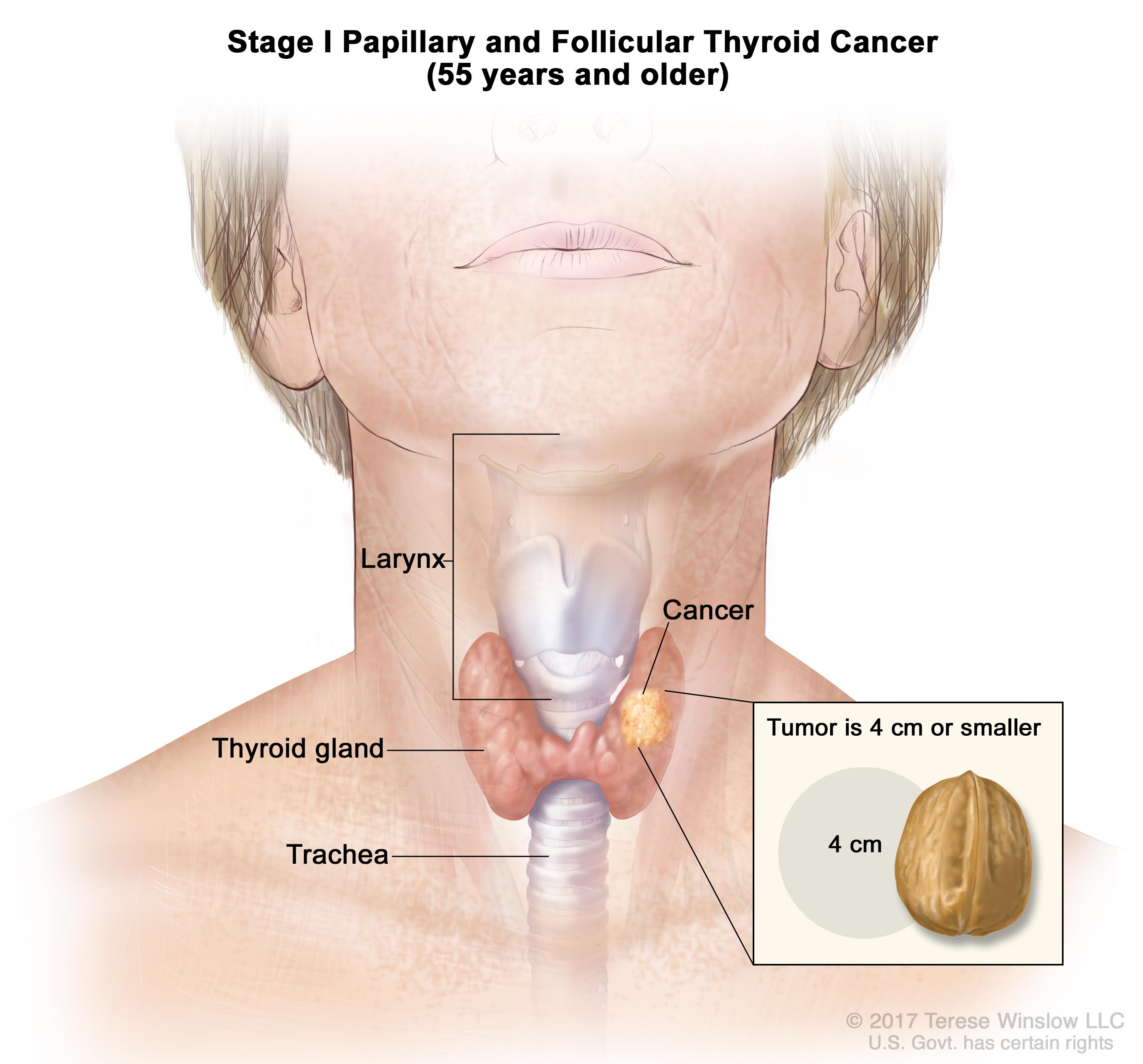 papillary thyroid cancer young age)