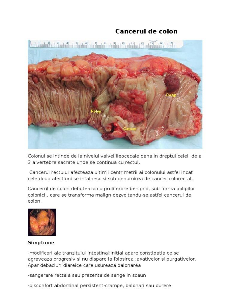 cancerul colorectal factori favorizanti