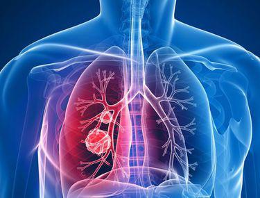 Cancer pulmonar (de plămâni) - Tot ce trebuie să ştii   Cancer