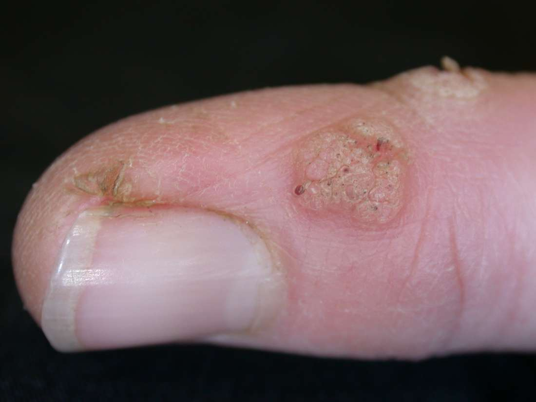 what does a wart virus look like)