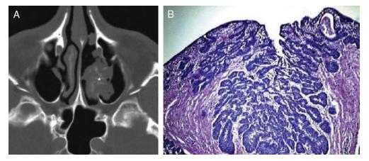 cancer pancreas biopsia)