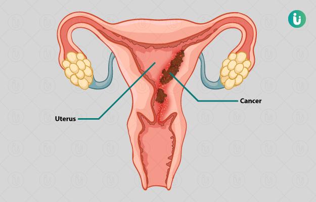 uterine cancer endometrial hpv gardasil impfung
