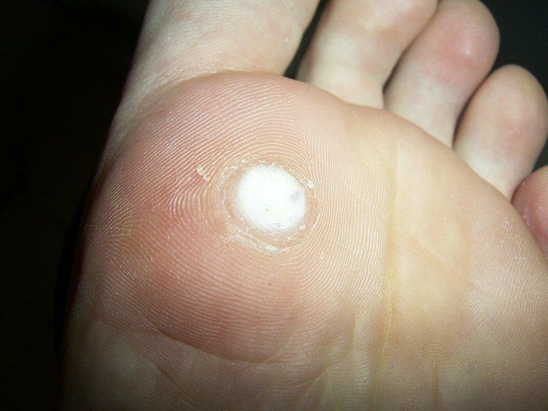 warts treatment salicylic acid hpv and cervical cancer pubmed