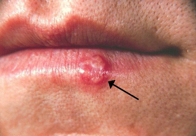 papilloma virus herpes labiale)