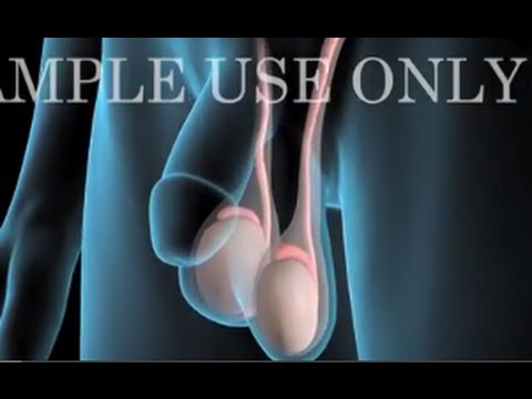 testicular cancer knee pain)