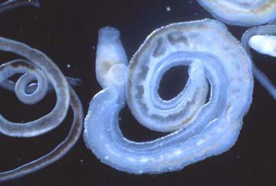 schistosomiasis etiologic agent)