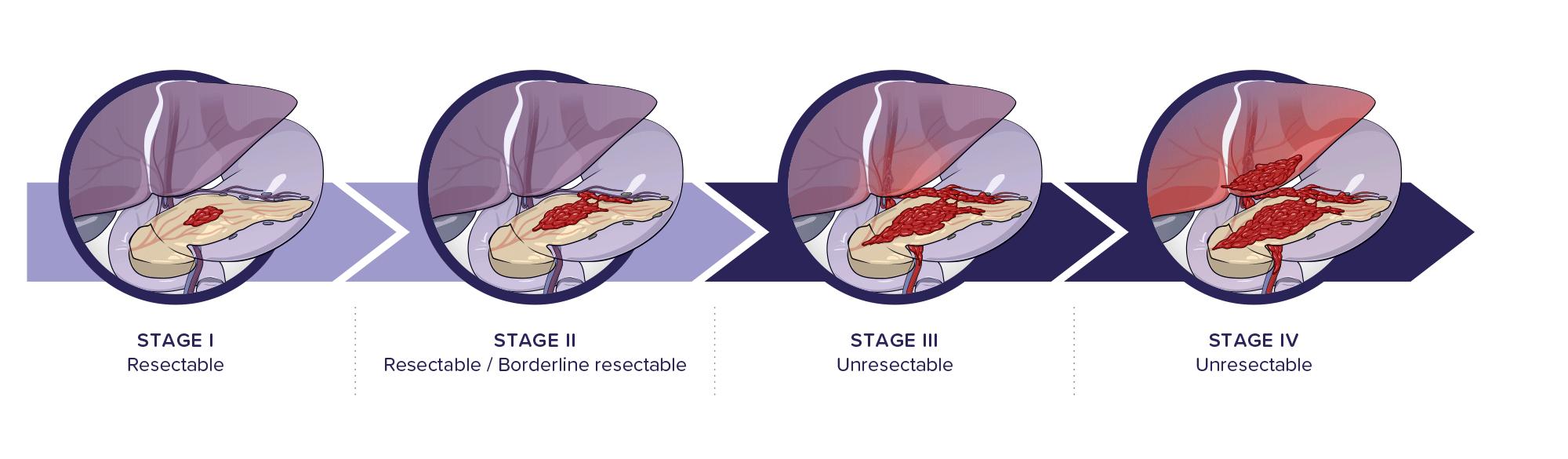Algoritmul de diagnostic al cancerului pancreatic