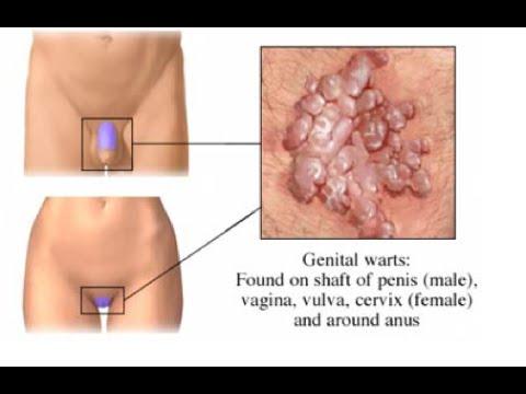 human papillomavirus in tagalog doctor detoxifiere timisoara