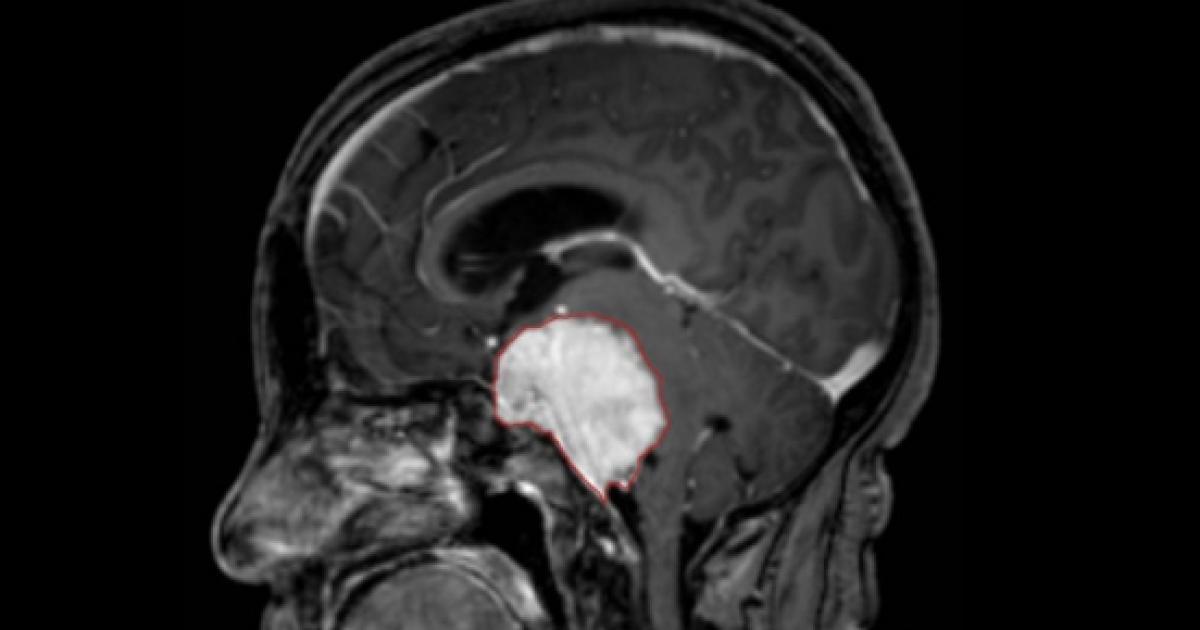 cancer cerebral esperanza de vida)
