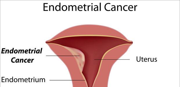 endometrial cancer is
