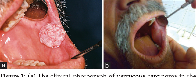 papilloma tumor)