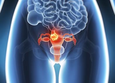 Varice de col uterin