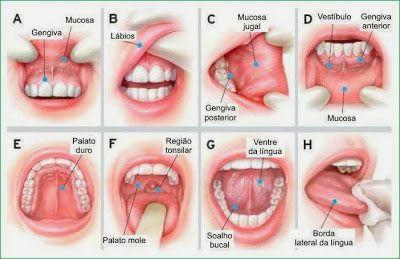 cancer de bucal)