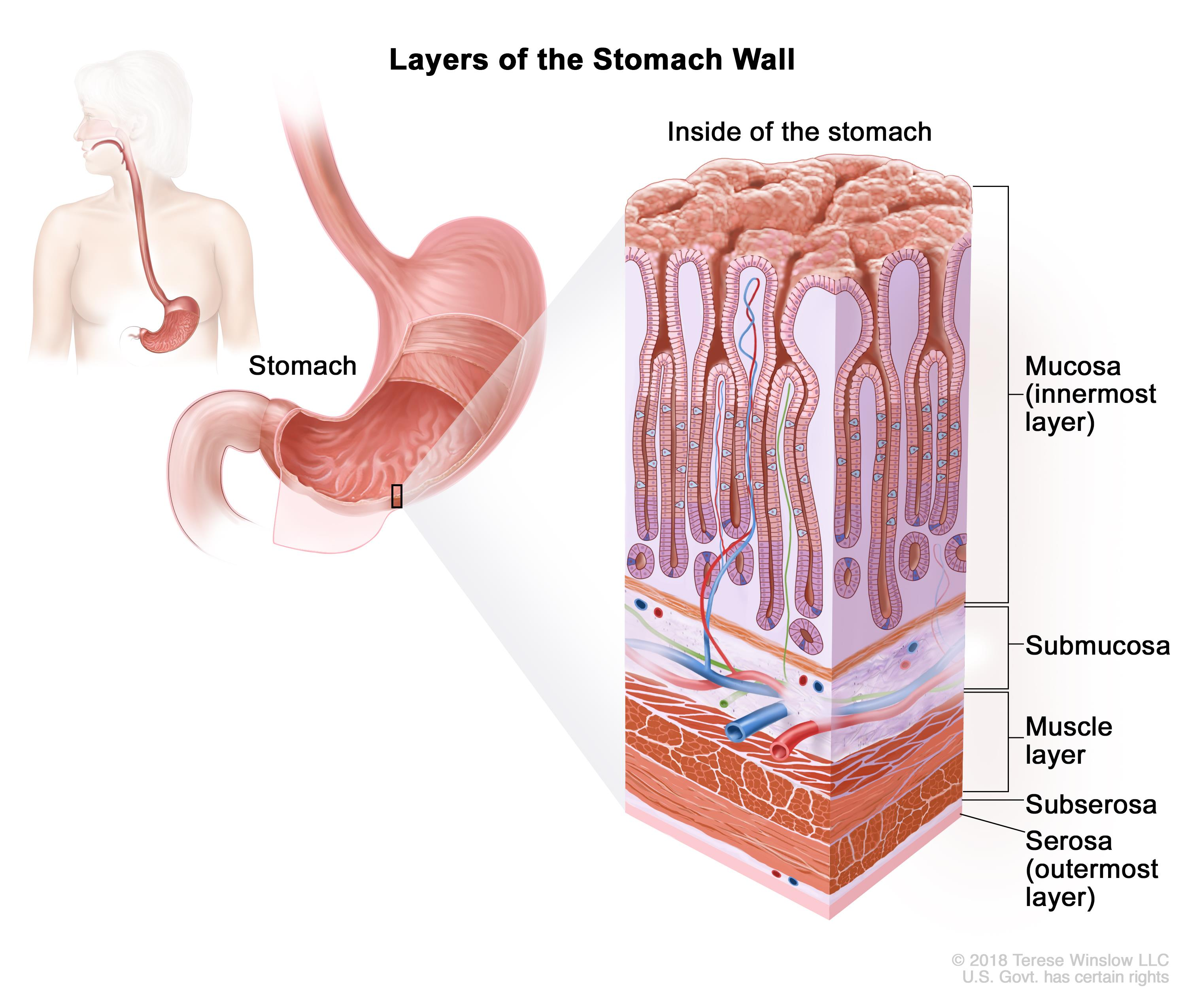 gastric cancer first stage)
