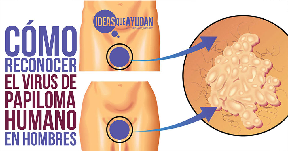 como detectar el virus papiloma humano en mujeres
