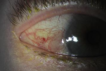 papilloma conjunctiva treatment)