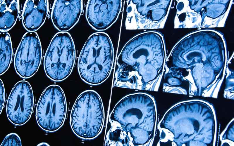 cancer cerebral que es)