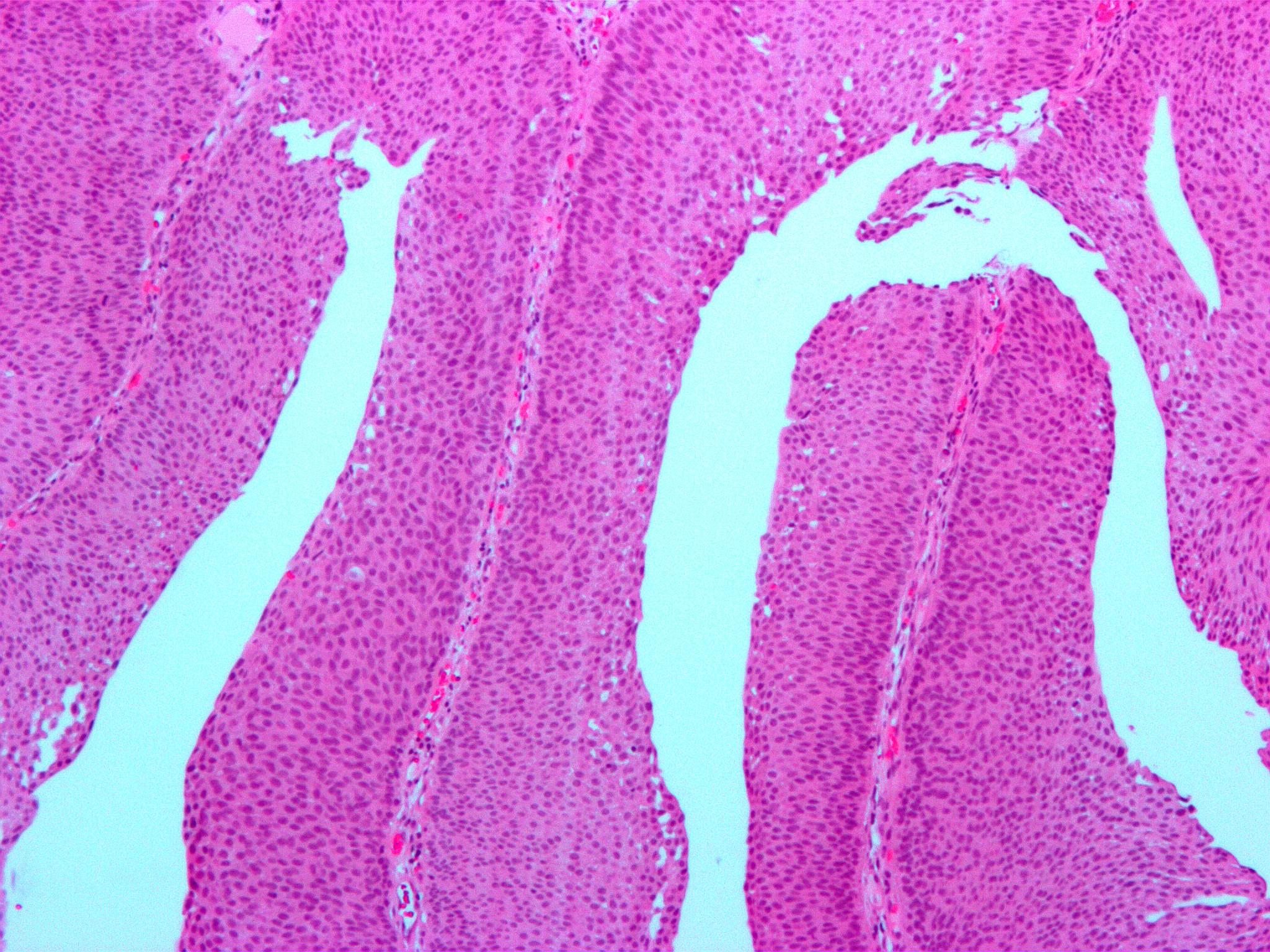 papillary urothelial malignant