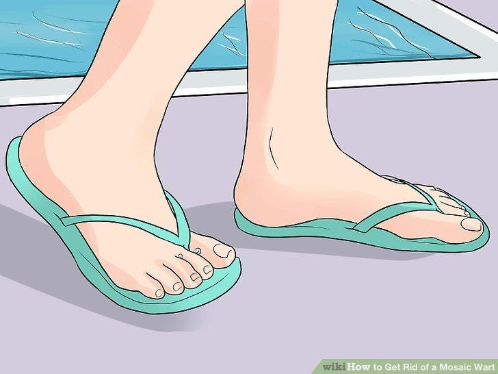 foot warts mosaic