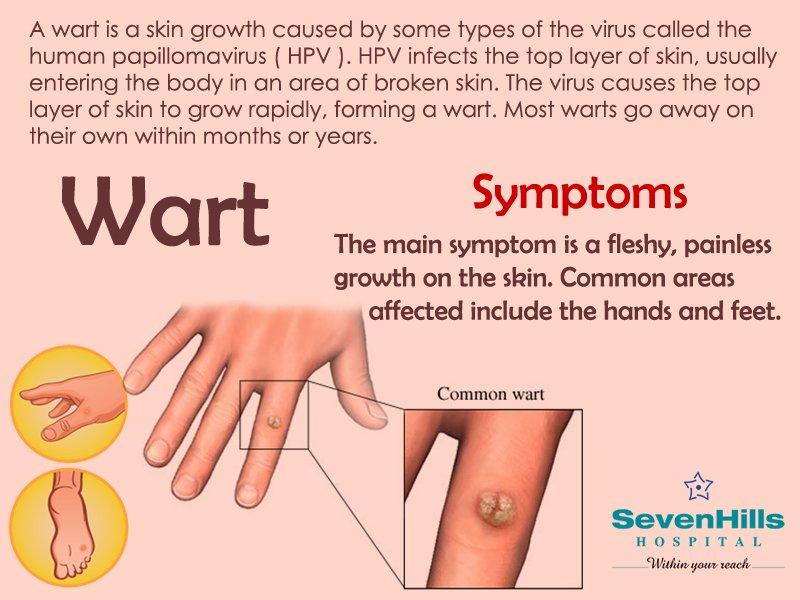hpv warts go away on their own papillomavirus que veut dire