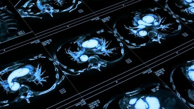 Carcinoamele bronho-pulmonare: ghid de diagnostic }i tratament