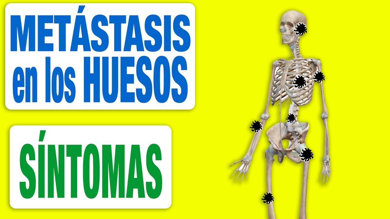 cancer prostata y huesos