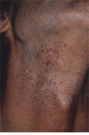 hpv on the neck