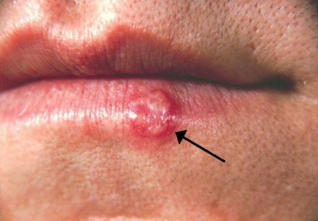papilloma virus si attacca con la saliva)