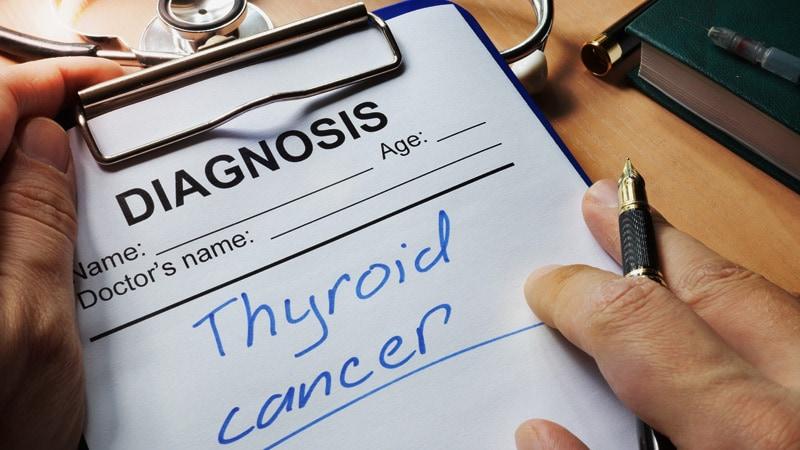 papillary thyroid cancer sloan kettering)