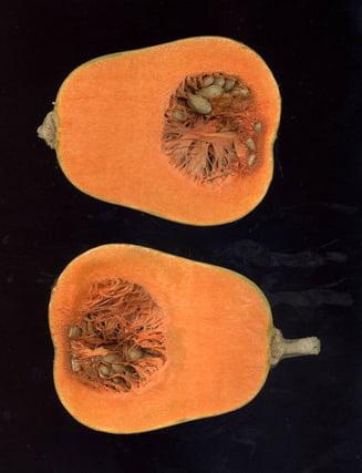 Mutaţii BRCA1 şi BRCA2 – cancer ereditar sân/ovar | Synevo