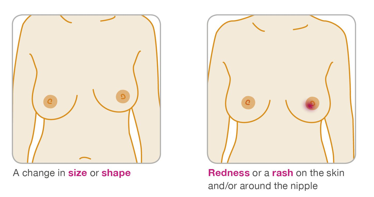 cancer on tip of nipple intraductal papilloma nhs
