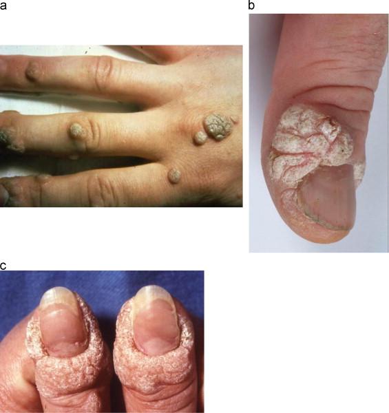 warts on hands and cervical cancer)