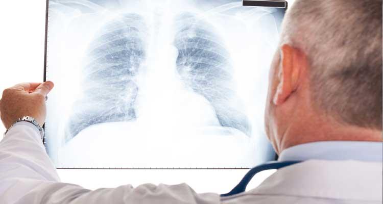 cancer pulmonar sintomas y tratamiento)