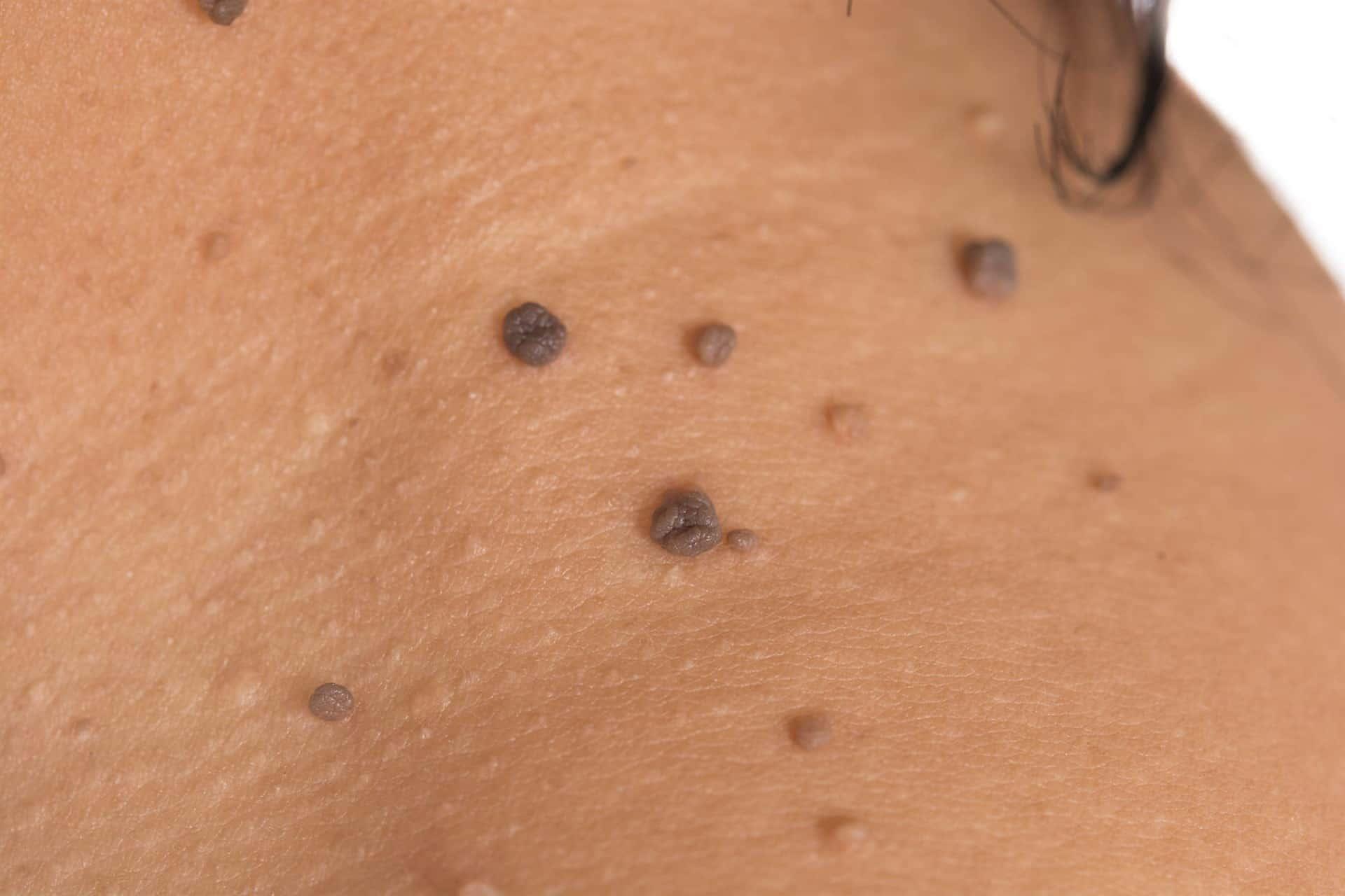 que son papilomas en la piel)