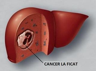 cancer la ficat)