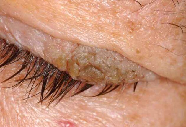 how is eyelid papilloma removed)