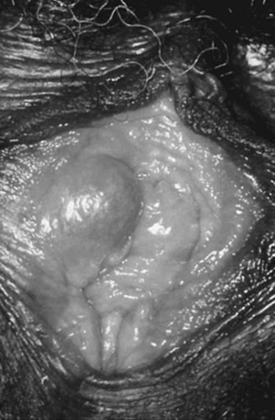 vestibular papillomatosis natural treatment