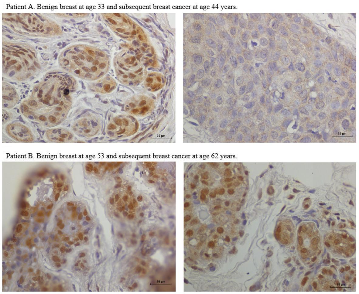 breast papilloma hpv