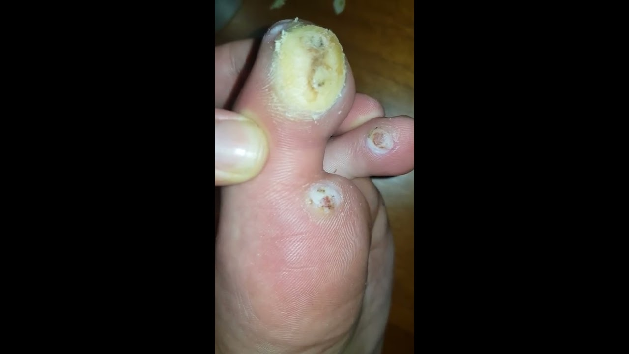 wart foot remove)