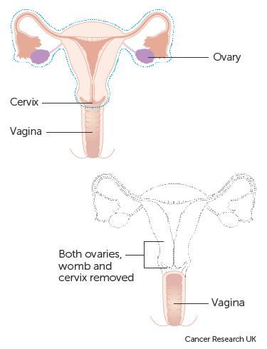 Vamyrowycu Ovarian Cancer Znaczenie